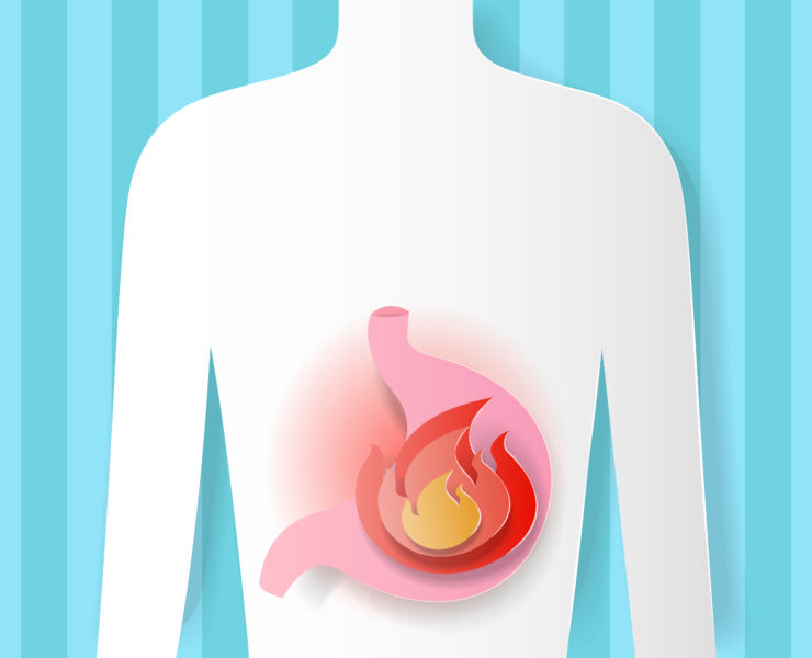 Heartburn & Acid Reflux