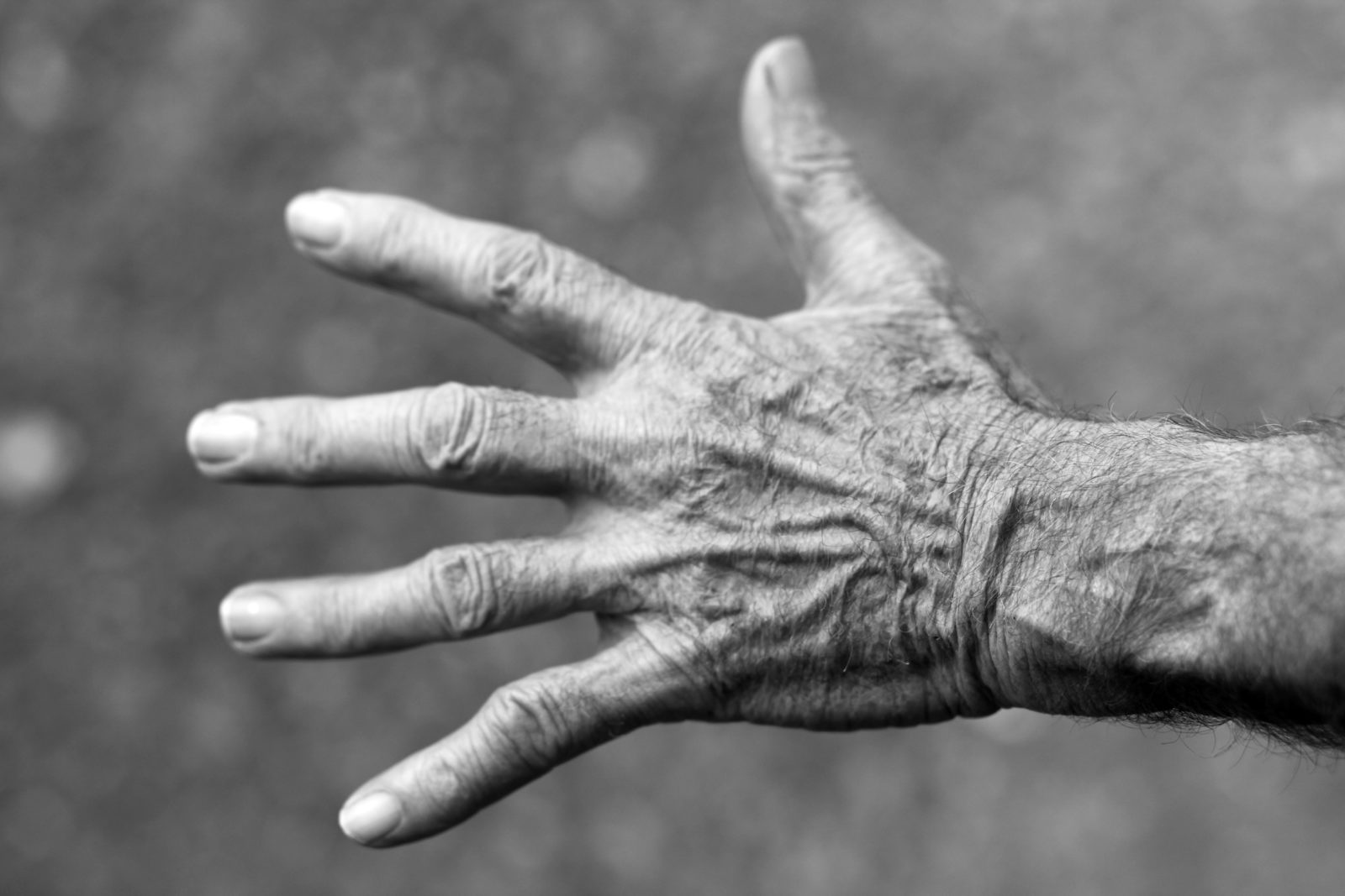 Arthritis -Types, Symptoms and Treatments