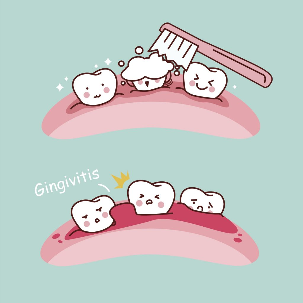 Gingivitis and teeth
