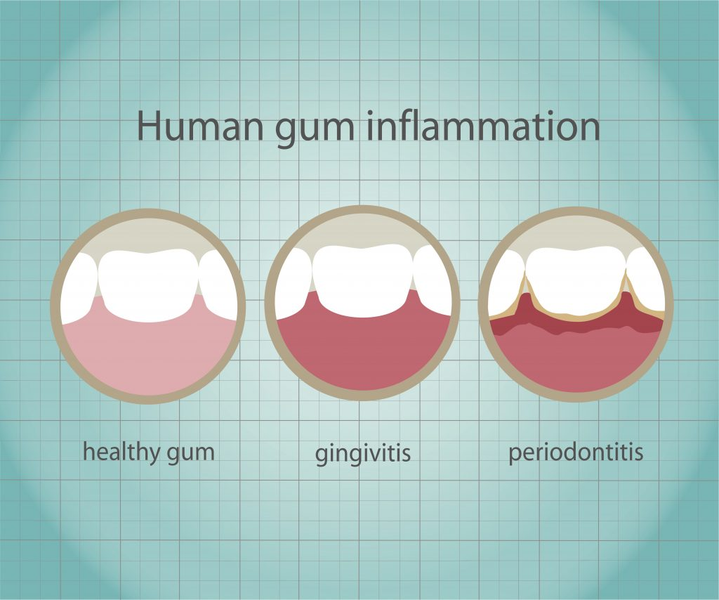Inflammation of Gums