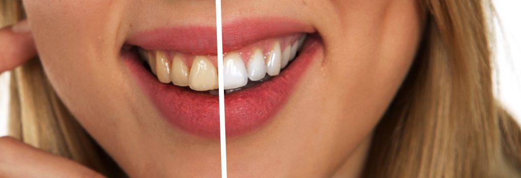 Oil Pulling - Holistic Oral Care - Benefits & How to Oil Pull